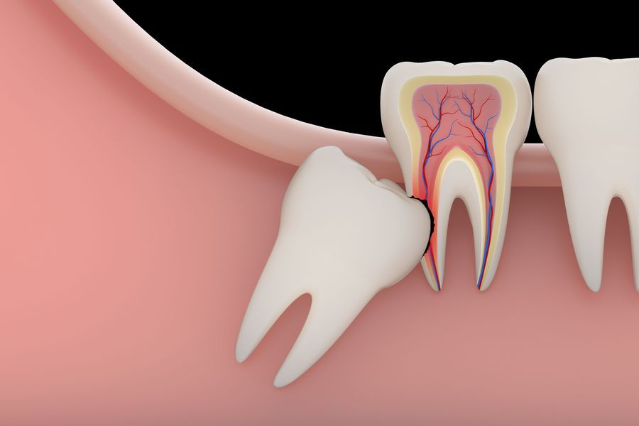 dental extraction in Austin